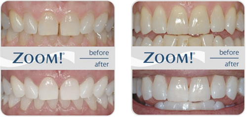 Zoom Formally Britesmile In Office Teeth Whitening System